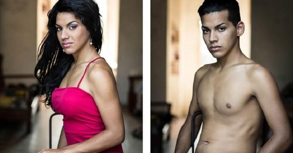 Transgender Breast Surgery San Diego